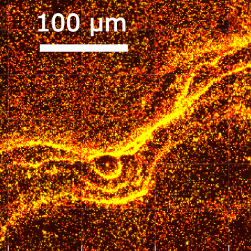 Image acquired with Oxford Nanoimaging Nanoimager